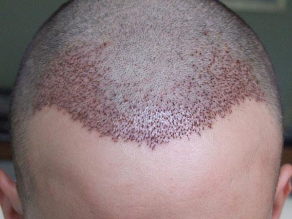 Implante capilar 2000 folículos