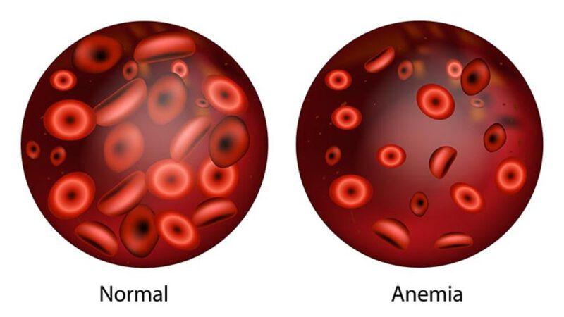 Caída del cabello por anemia