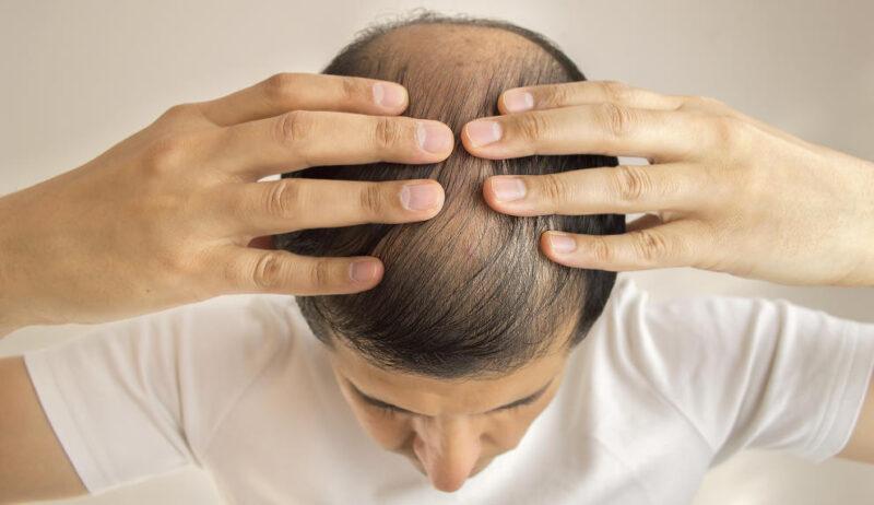 Caída del cabello hombres