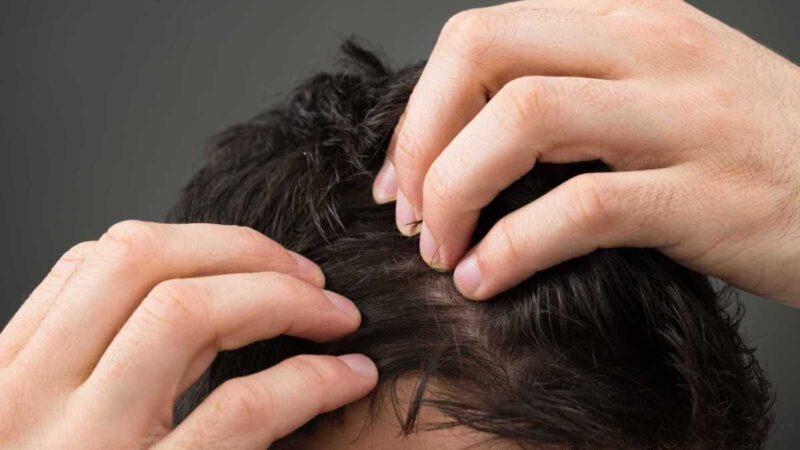 Detener la caída del cabello