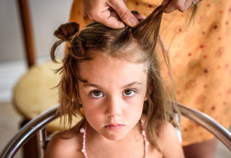 Caída del cabello en niños
