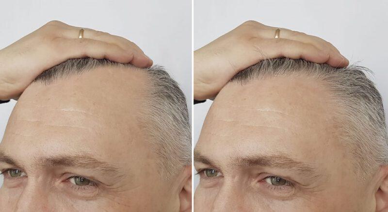 Implante capilar mes a mes