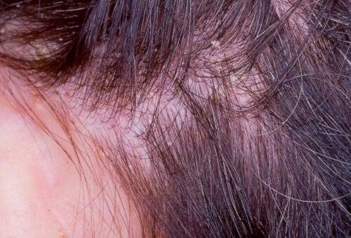 Hongos en la cabeza y caída del cabello