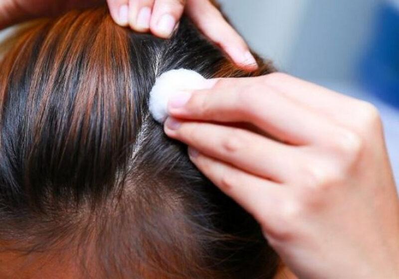 Infusiones para la caída del cabello