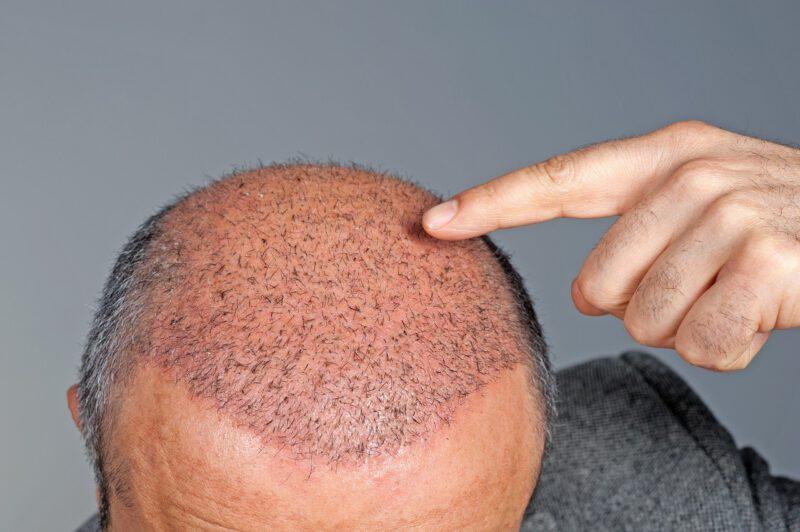 Especialistas caída del cabello