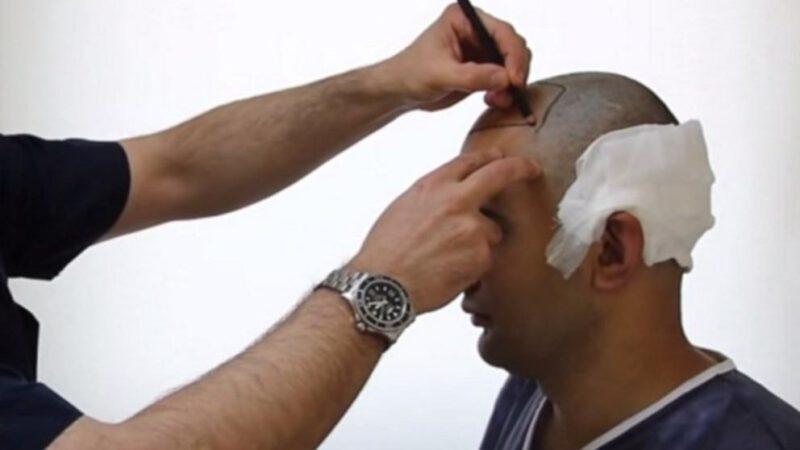 Mejor clínica trasplante capilar Turquía