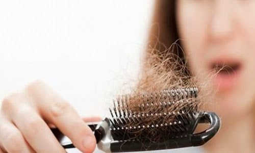 Caída de pelo mujer