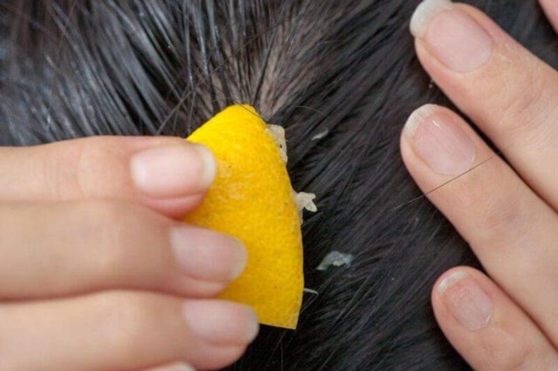 Productos para la caída del cabello