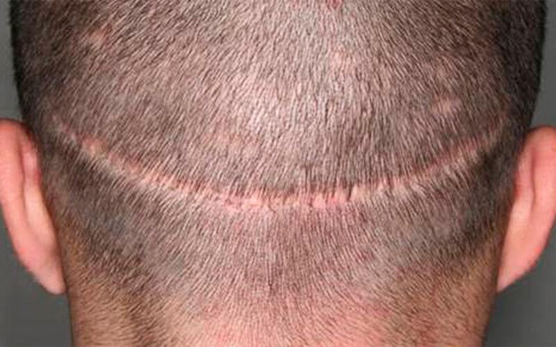 Implante capilar fuss
