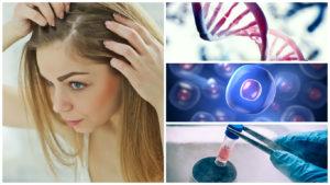 Trasplante capilar con células madre precios