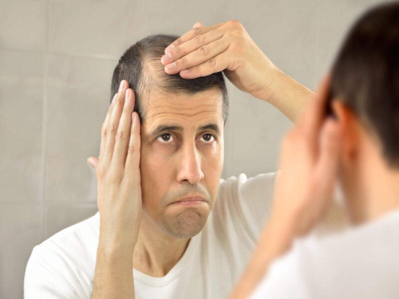 Yodo para la caída del cabello